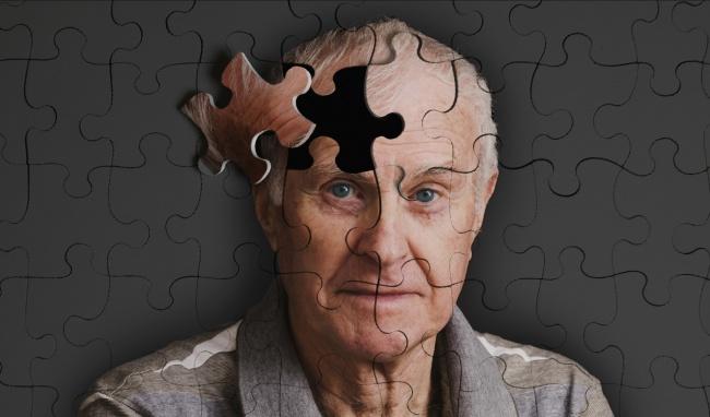 Hội chứng suy giảm trí nhớ - bệnh Alzheimer
