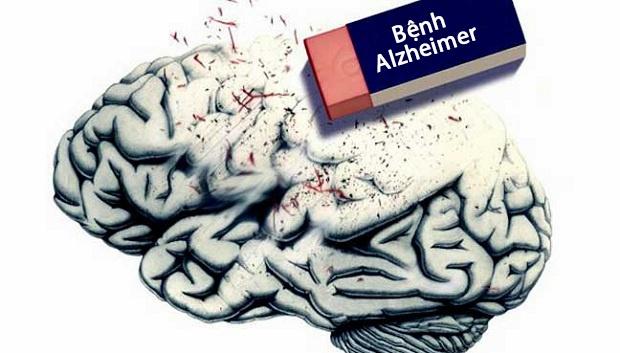 Alzheimerlà bệnh thoái hóa não nguyên phát, gây nên tình trạng suy giảm trí nhớ nghiêm trọng