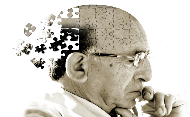 Bệnh nhân Alzheimer sẽ mất dần khả năng ghi nhớ