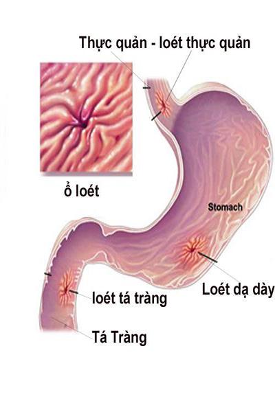 Tham khảo bệnh án viêm loét dạ dày tá tràng theo yhct