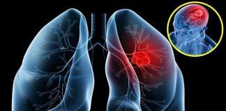 Dấu hiệu sớm của ung thư phổi không nên bỏ qua