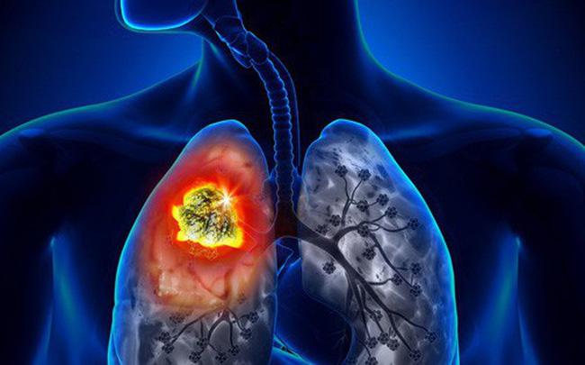 Ngoài các dấu hiệu trên, ung thư phổi cũng có các triệu chứng chung như mệt mỏi hoặc giảm cân không rõ nguyên nhân