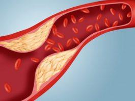 Nguyên nhân gây bệnh mỡ máu cao